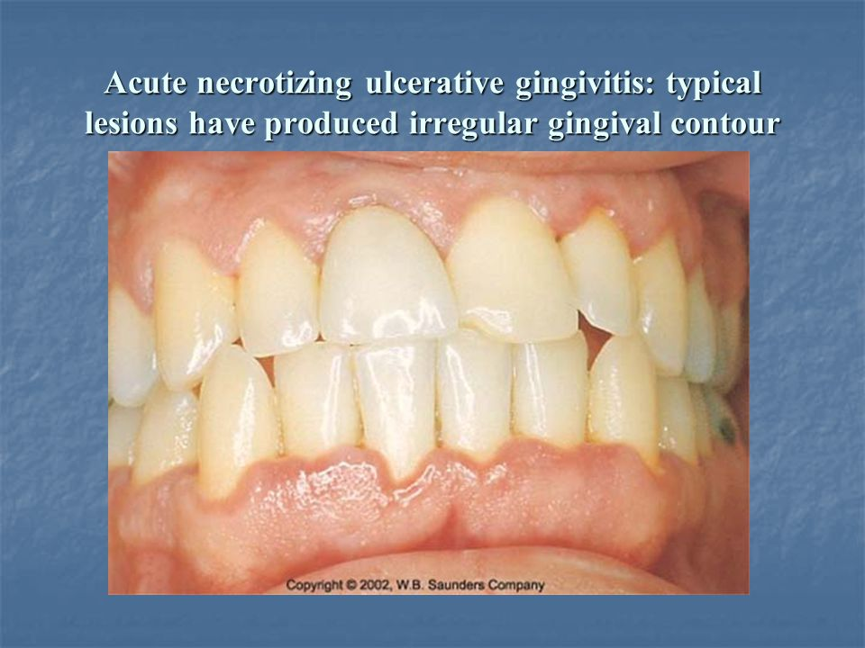 Acute necrotizing ulcerative gingivitis: typical lesions have produced irregular gingival contour