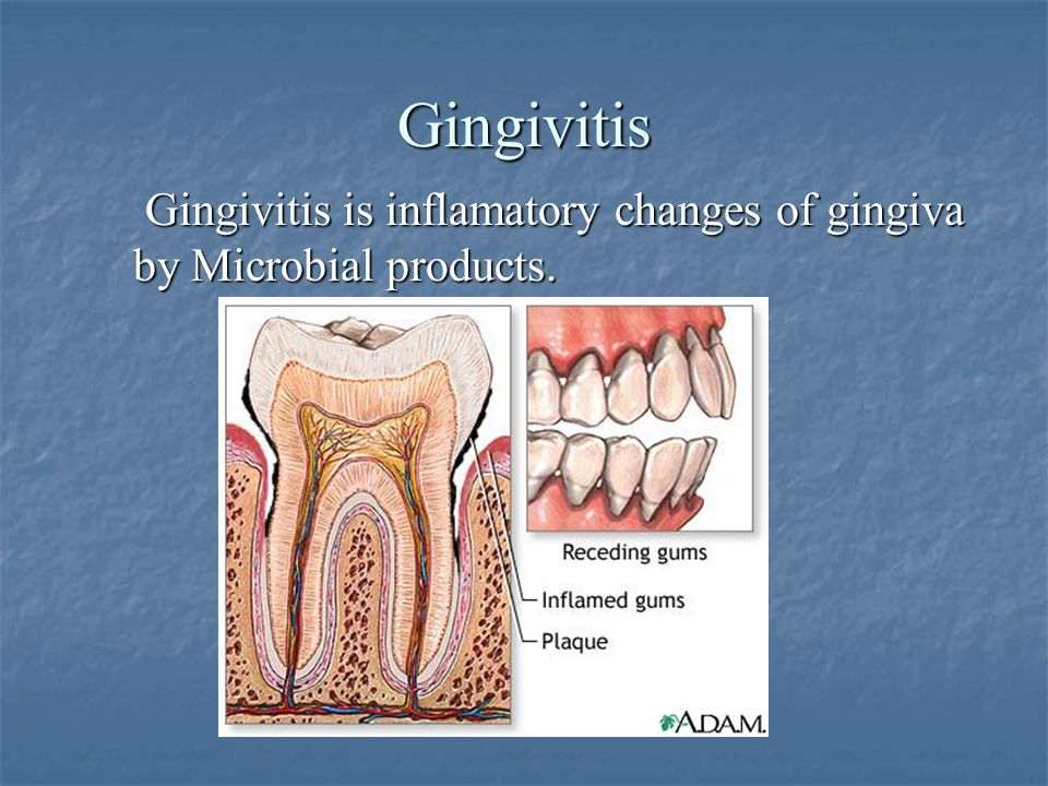 Gingivitis Gingivitis is inflamatory changes of gingiva by Microbial products.