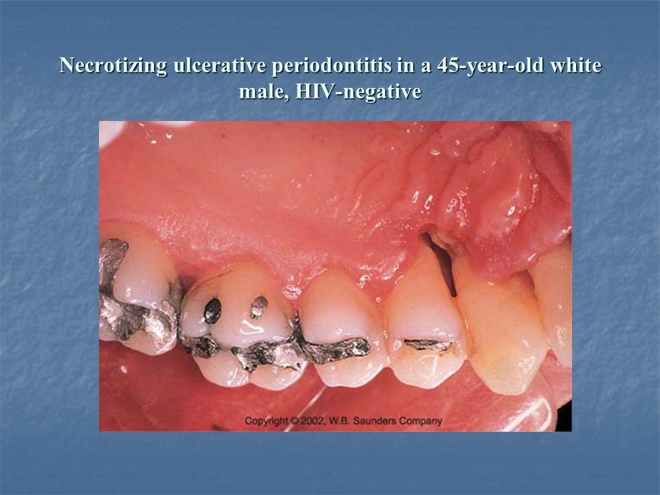 Necrotizing ulcerative periodontitis in a 45-year-old white male, HIV-negative
