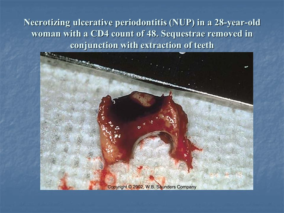 Necrotizing ulcerative periodontitis (NUP) in a 28-year-old woman with a CD4 count of 48.
