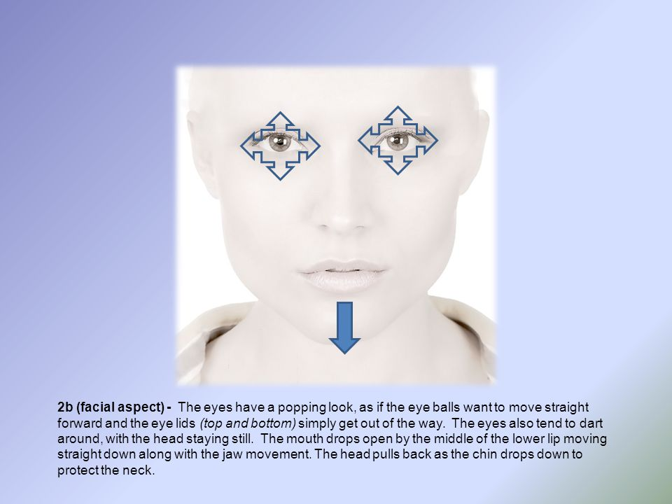 2b (facial aspect) - The eyes have a popping look, as if the eye balls want to move straight forward and the eye lids (top and bottom) simply get out of the way.