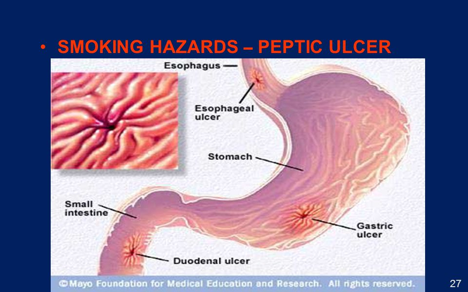 SMOKING HAZARDS – PEPTIC ULCER