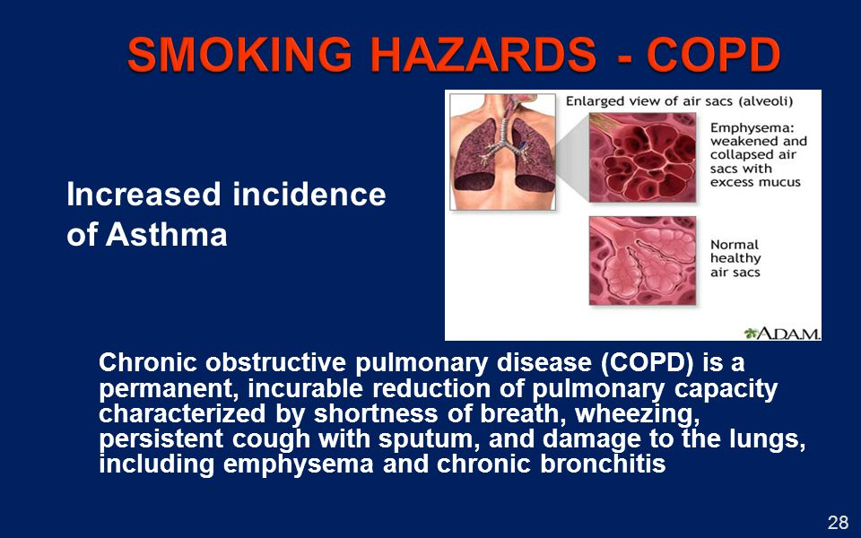 SMOKING HAZARDS - COPD Increased incidence of Asthma