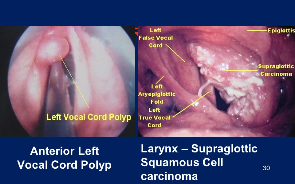 SMOKING HAZARDS - LARYNX