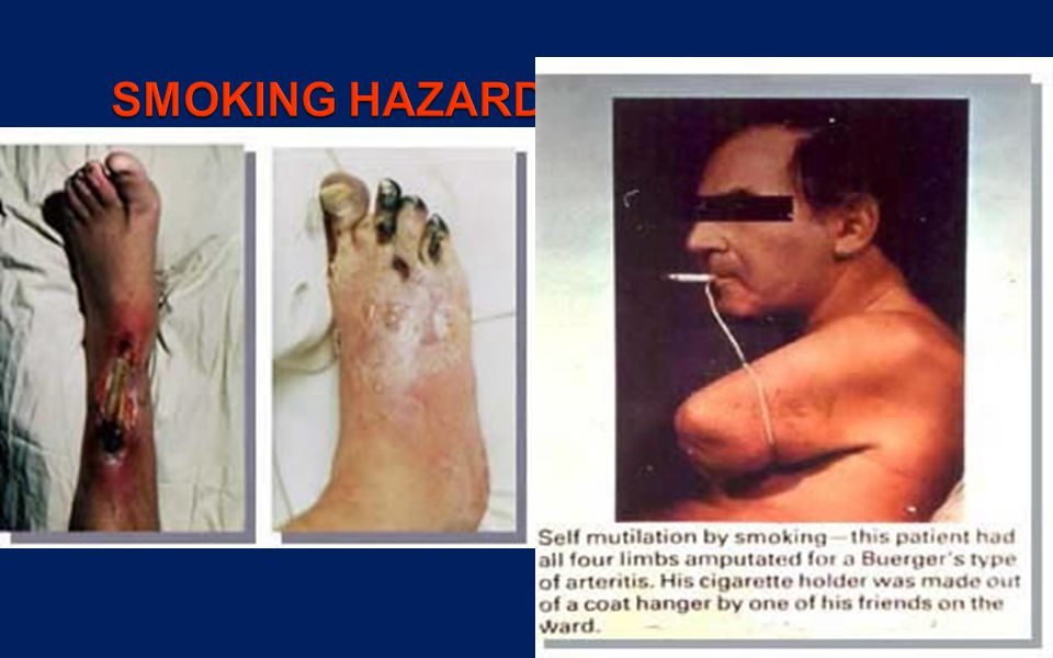 SMOKING HAZARDS - VASCULAR