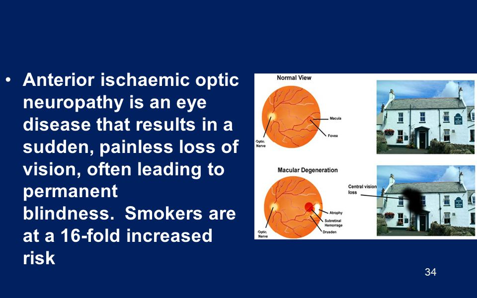 Anterior ischaemic optic neuropathy is an eye disease that results in a sudden, painless loss of vision, often leading to permanent blindness. Smokers are at a 16-fold increased risk