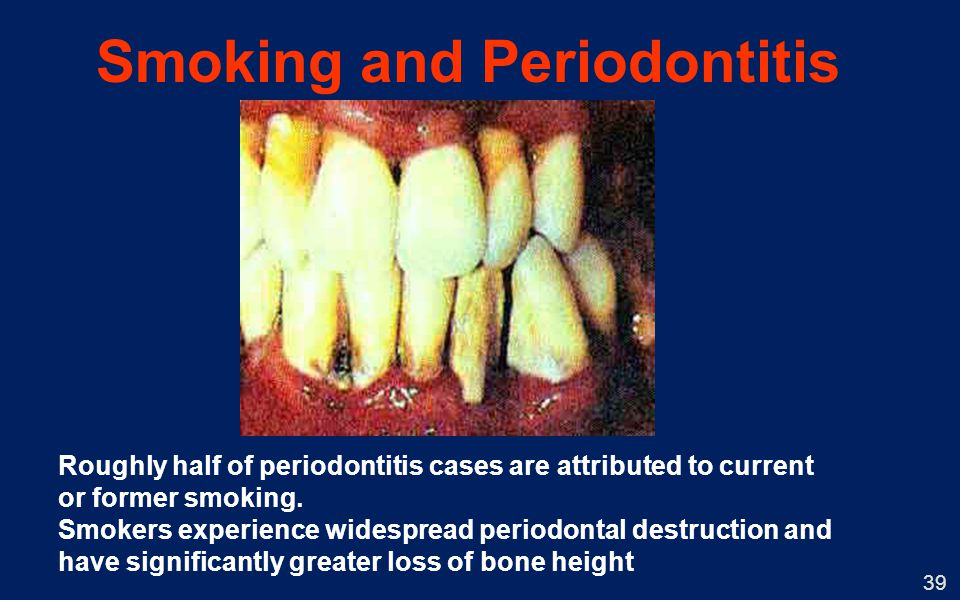Smoking and Periodontitis