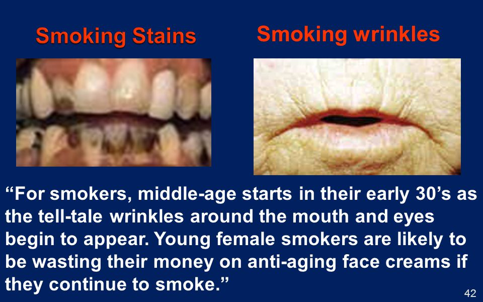 Smoking Stains Smoking wrinkles