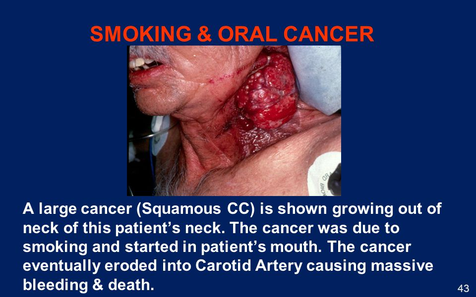 SMOKING & ORAL CANCER