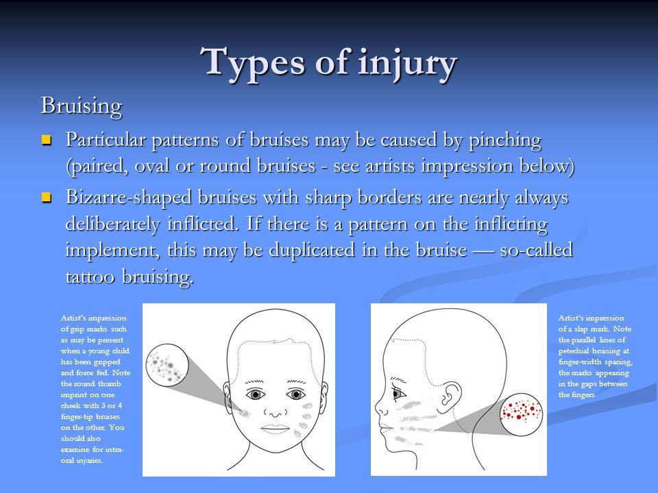 Types of injury Bruising