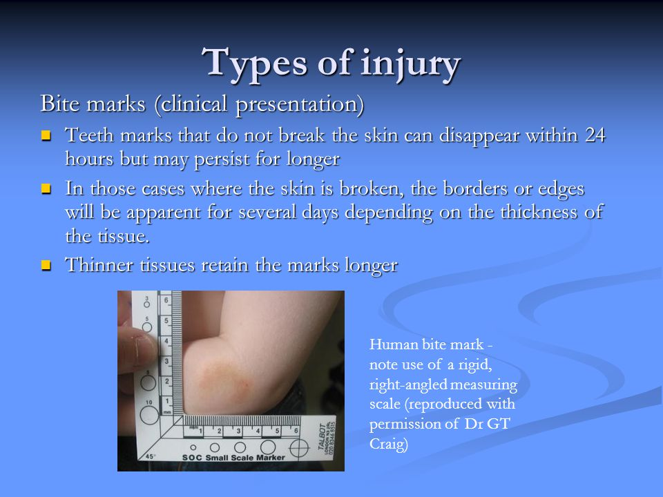 Types of injury Bite marks (clinical presentation)
