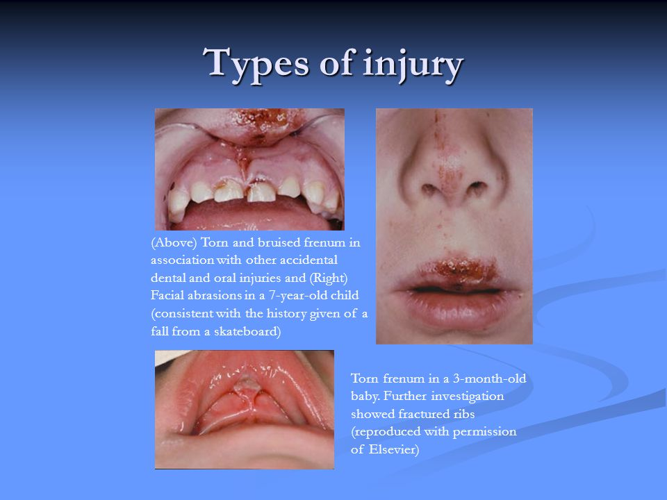 Labial Frenulum Injury Pictures to Pin on Pinterest