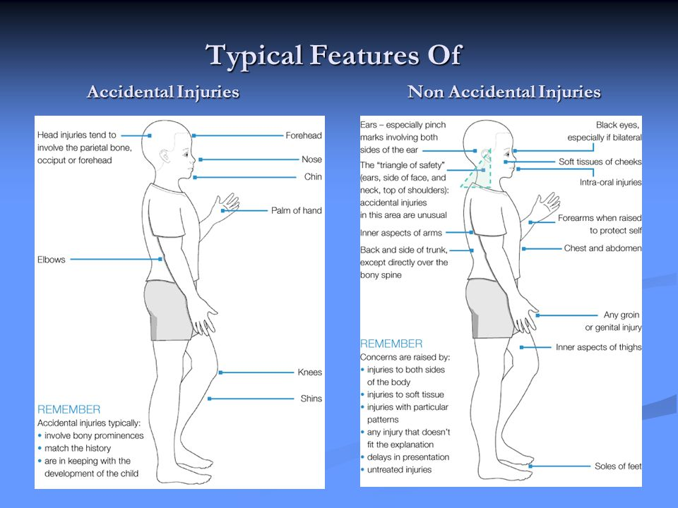 Typical Features Of Accidental Injuries Non Accidental Injuries