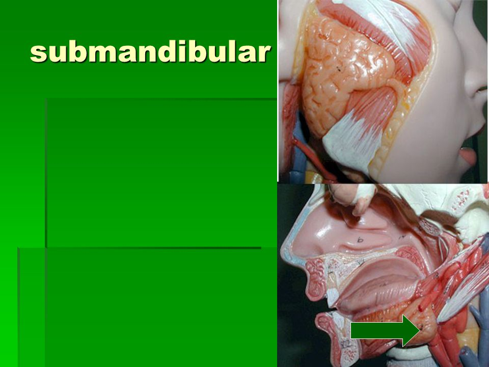 submandibular