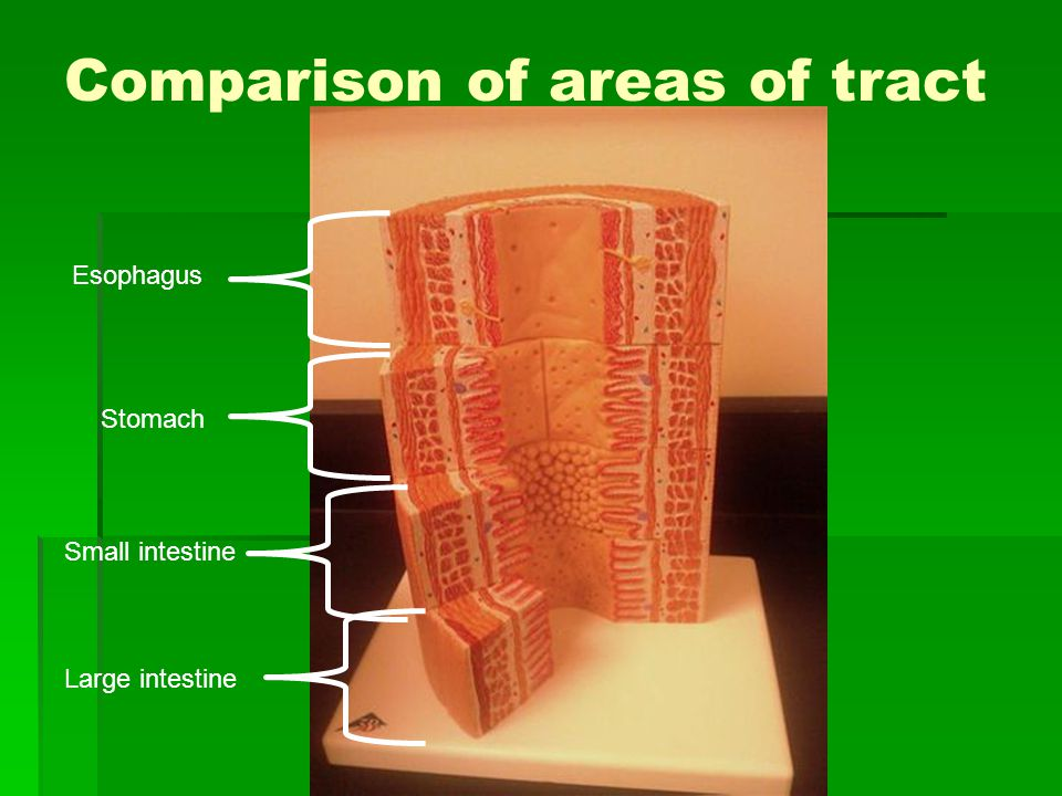 Comparison of areas of tract