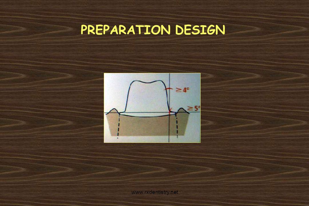 PREPARATION DESIGN www.rxdentistry.net