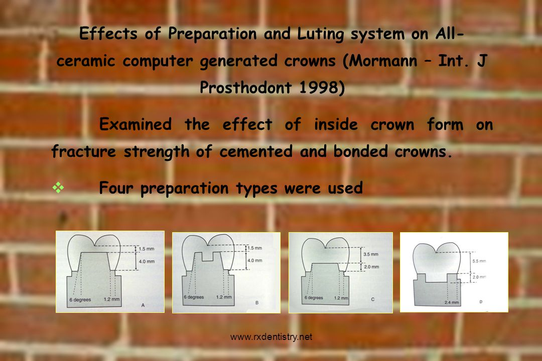 Four preparation types were used