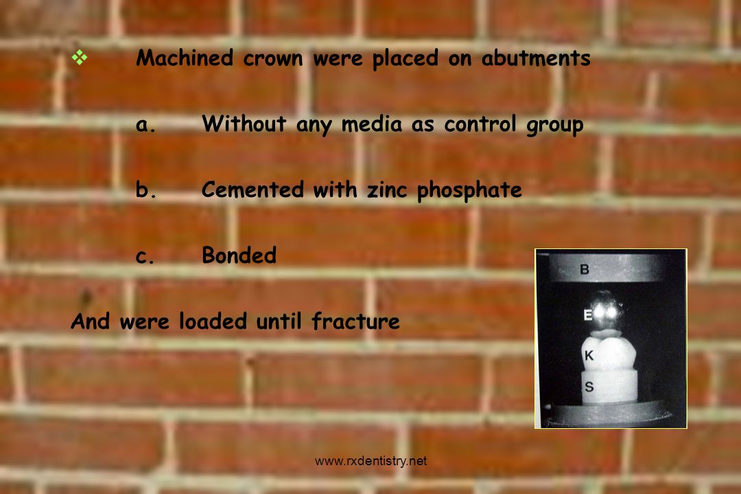 Machined crown were placed on abutments