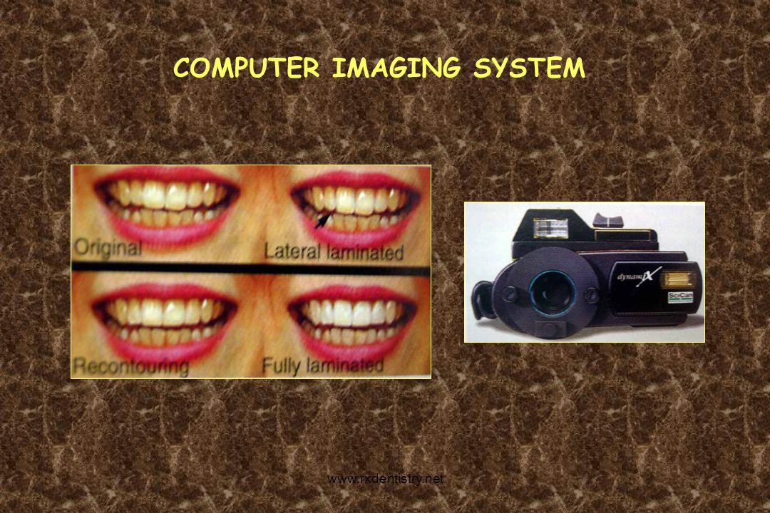 COMPUTER IMAGING SYSTEM