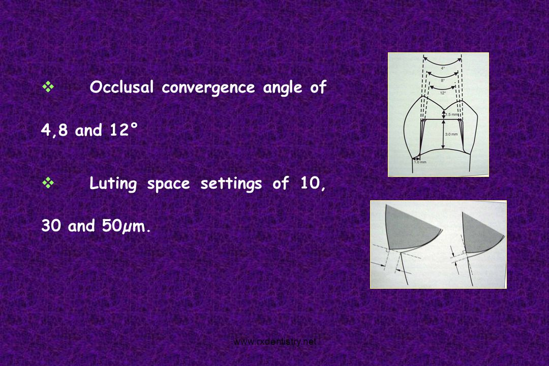 Occlusal convergence angle of 4,8 and 12°