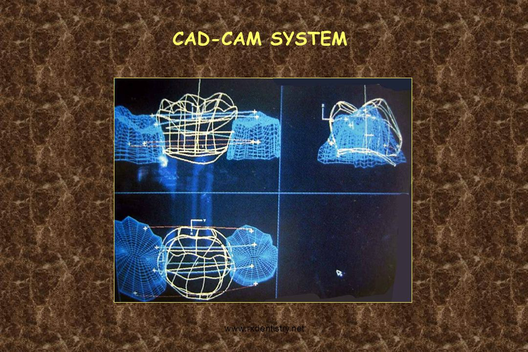 CAD-CAM SYSTEM www.rxdentistry.net