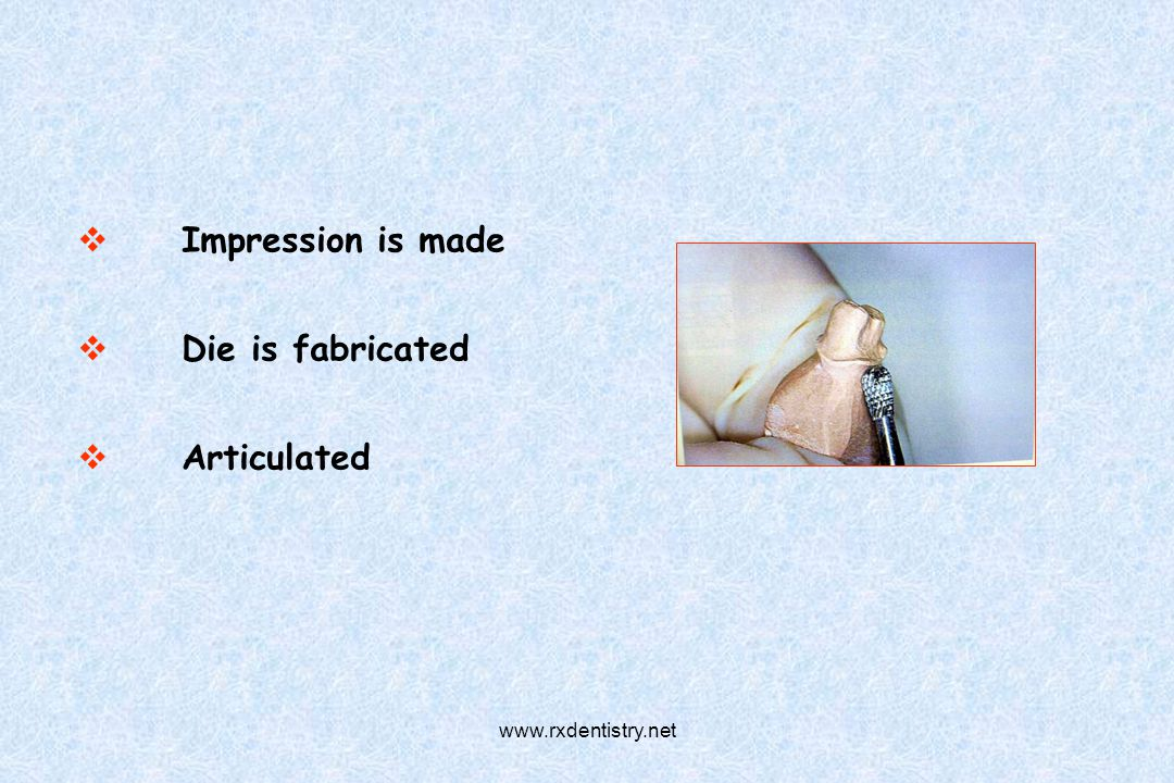 Impression is made Die is fabricated Articulated www.rxdentistry.net