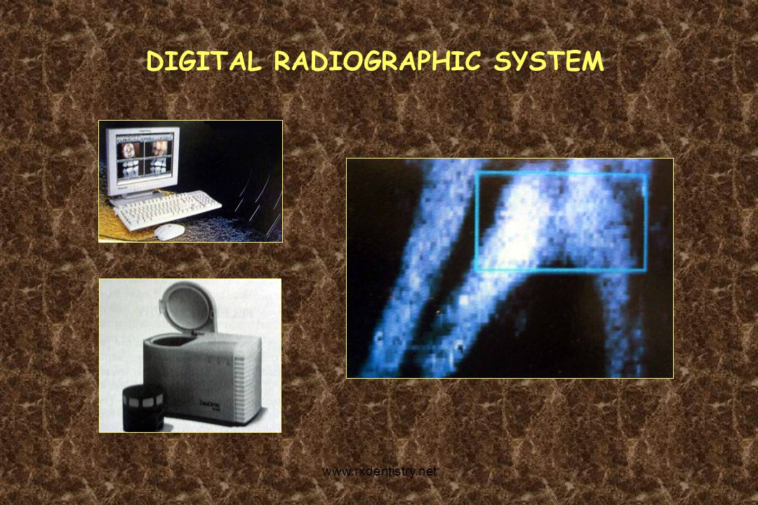 DIGITAL RADIOGRAPHIC SYSTEM
