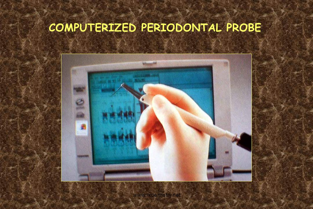 COMPUTERIZED PERIODONTAL PROBE