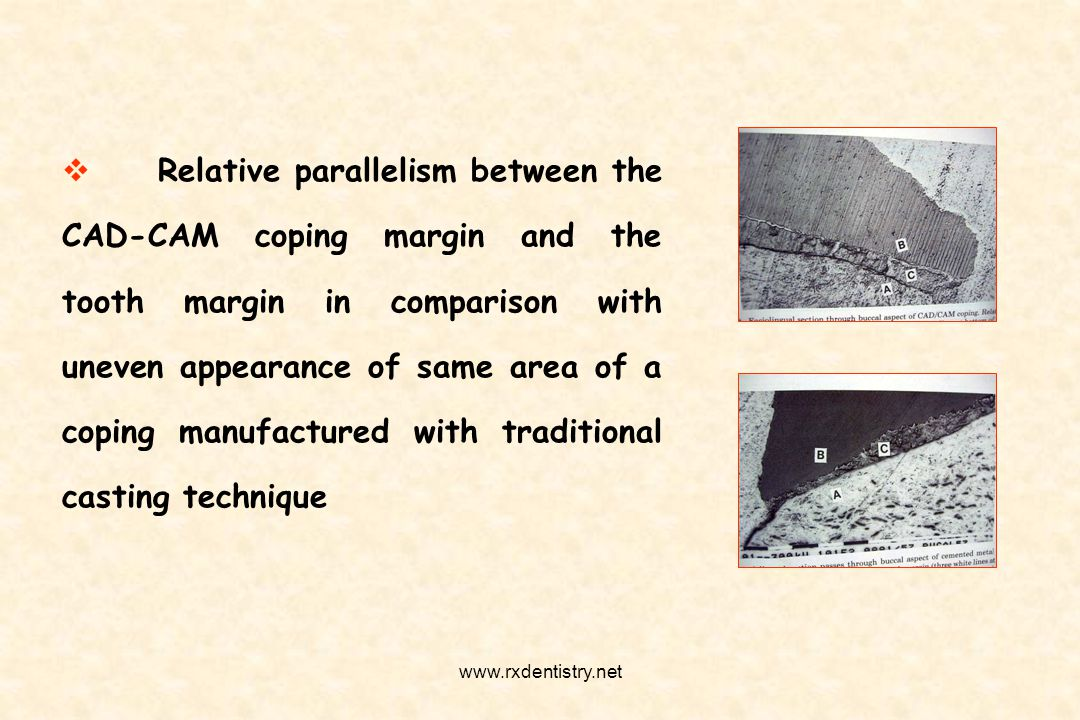 Relative parallelism between the CAD-CAM coping margin and the tooth margin in comparison with uneven appearance of same area of a coping manufactured with traditional casting technique