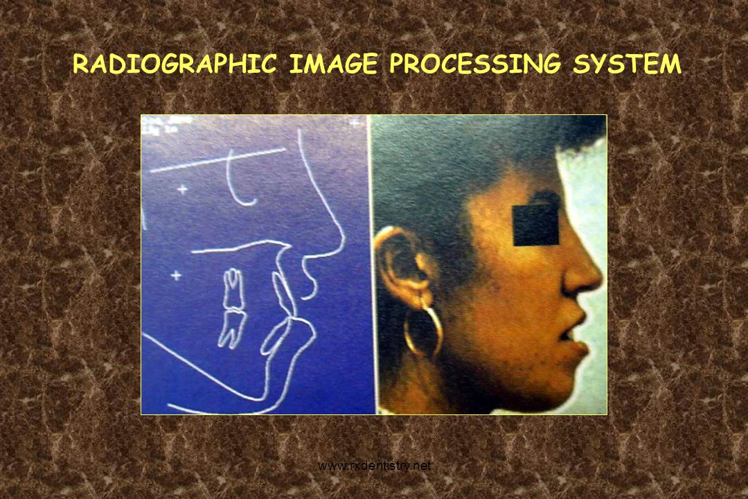 RADIOGRAPHIC IMAGE PROCESSING SYSTEM