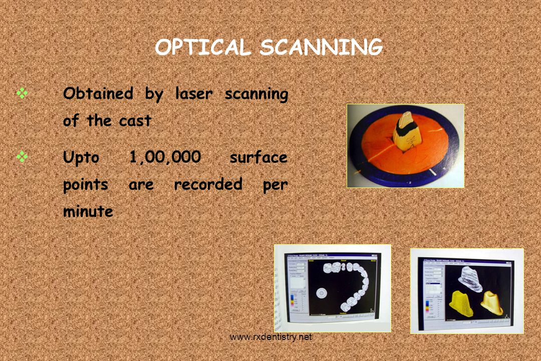 OPTICAL SCANNING Obtained by laser scanning of the cast