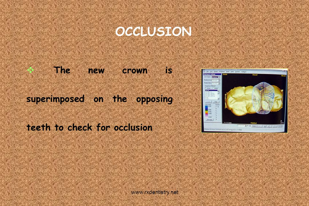 OCCLUSION The new crown is superimposed on the opposing teeth to check for occlusion.