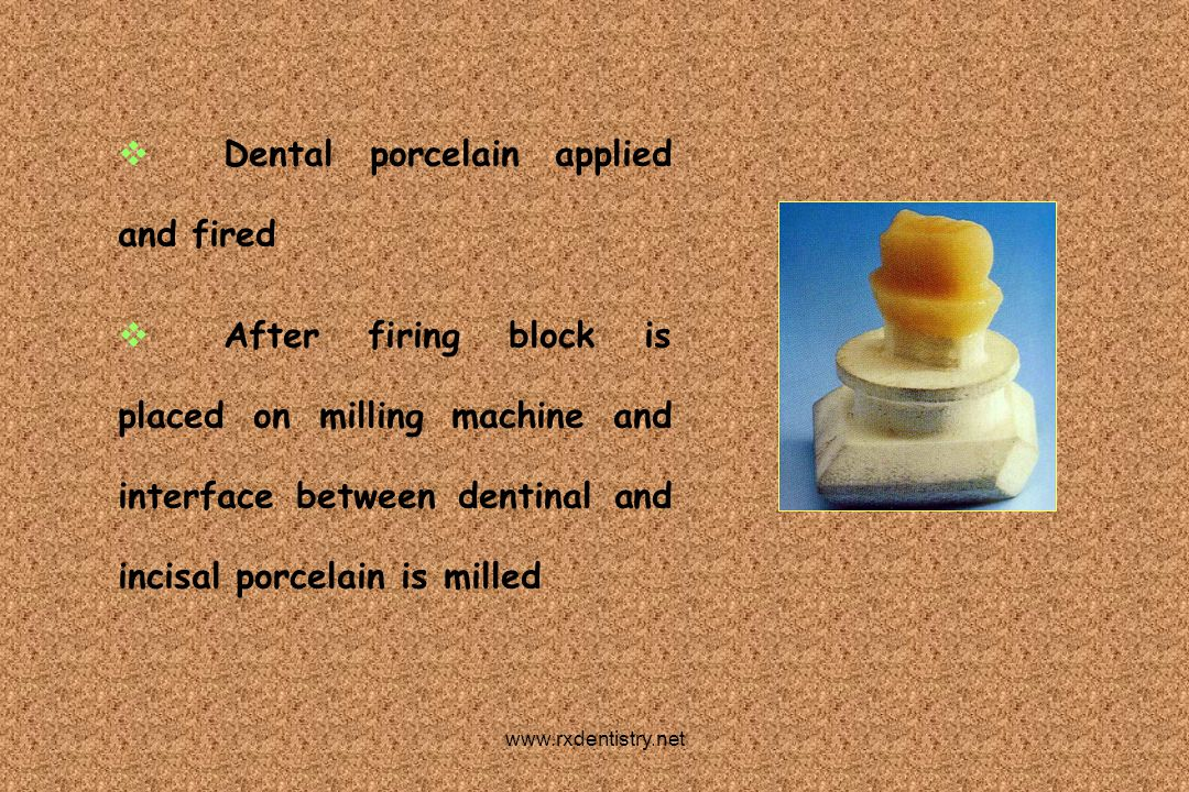 Dental porcelain applied and fired