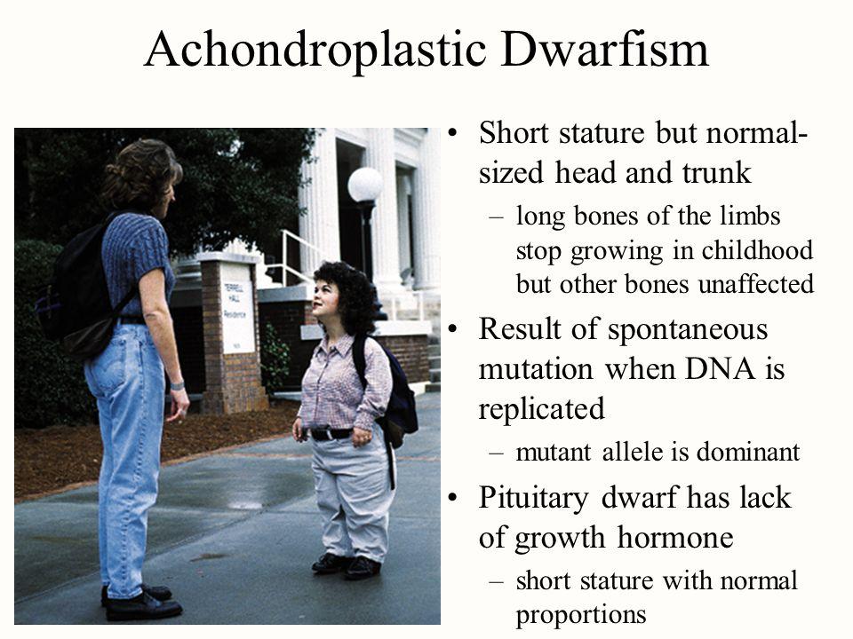 Achondroplastic Dwarfism