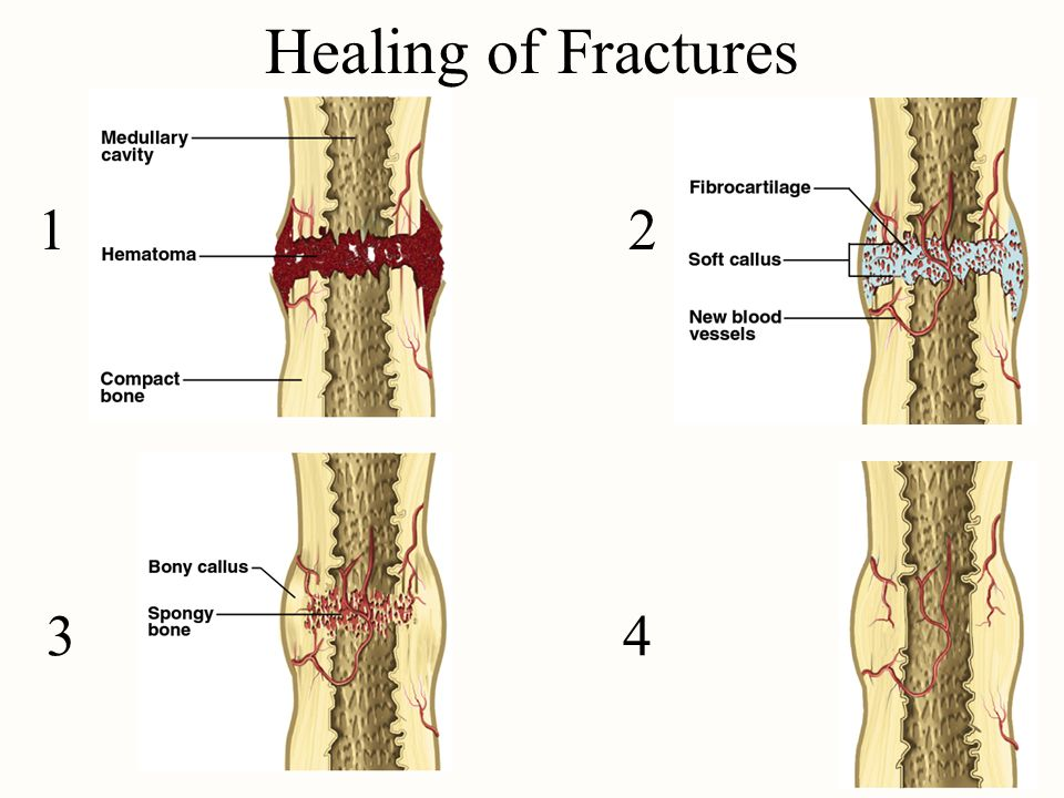 Healing of Fractures 1 2.