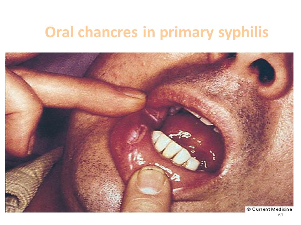 Oral chancres in primary syphilis