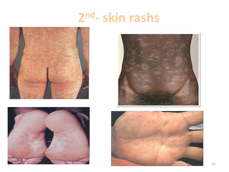 2nd- skin rashs