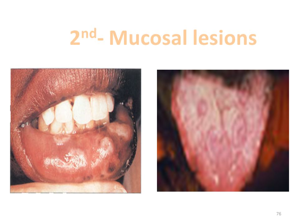 2nd- Mucosal lesions