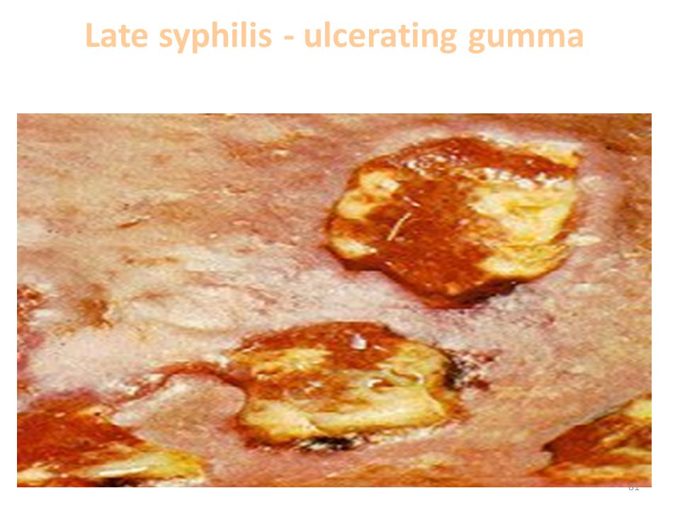 Late syphilis - ulcerating gumma