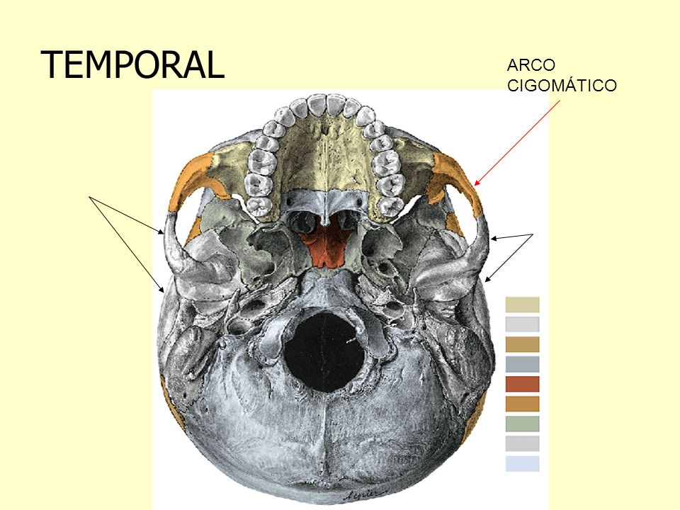 TEMPORAL ARCO CIGOMÁTICO