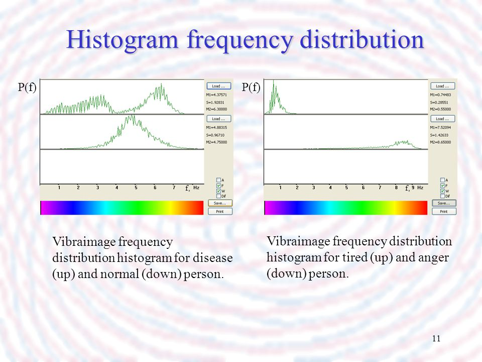 Histogram frequency distribution