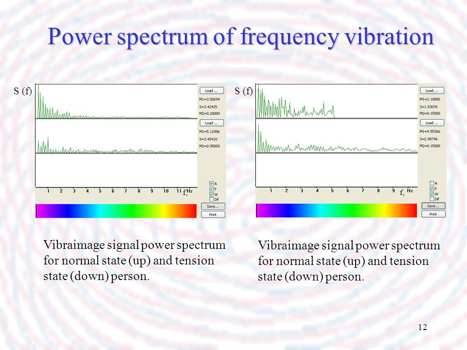 Power spectrum of frequency vibration