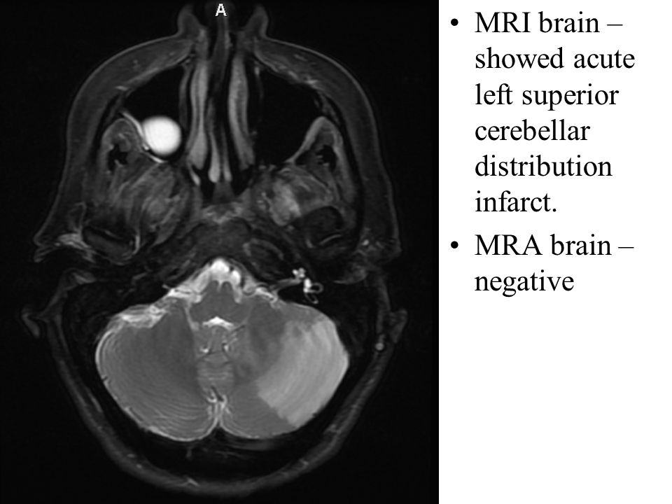 MRI brain –showed acute left superior cerebellar distribution infarct.