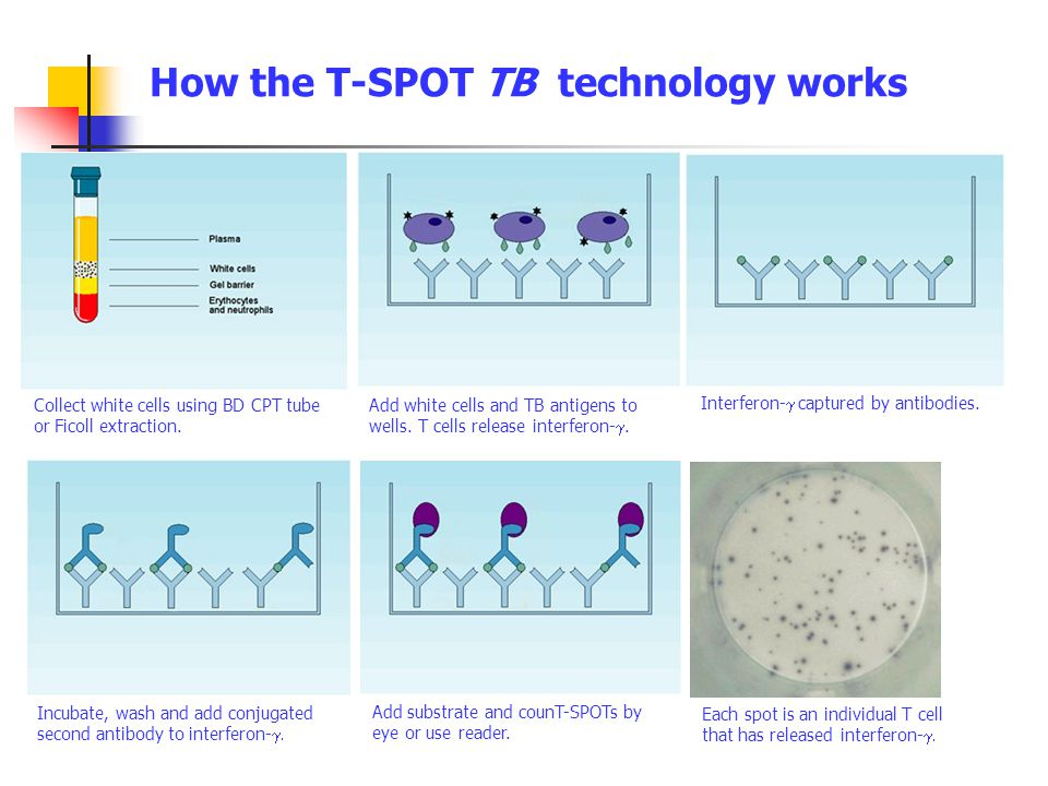 How the T-SPOT TB technology works
