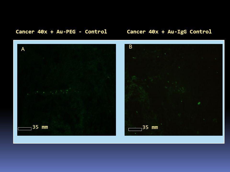 Cancer 40x + Au-PEG - Control
