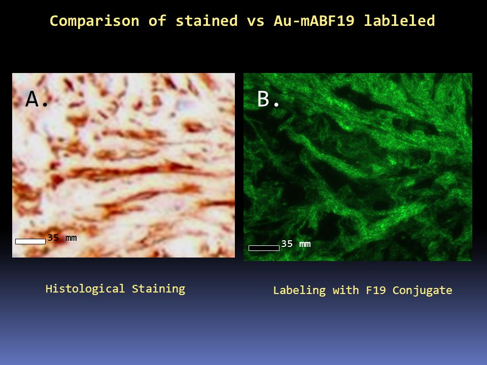 A. B. Comparison of stained vs Au-mABF19 lableled