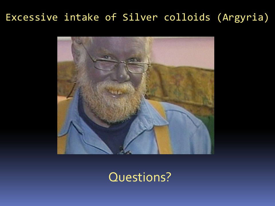 Excessive intake of Silver colloids (Argyria)