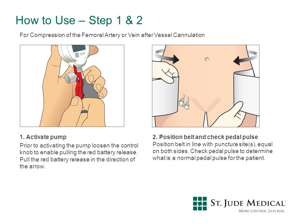 How to Use – Step 1 & 2 For Compression of the Femoral Artery or Vein after Vessel Cannulation.