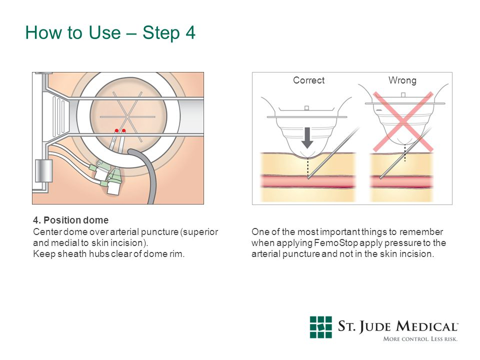 How to Use – Step 4 Correct Wrong 4. Position dome