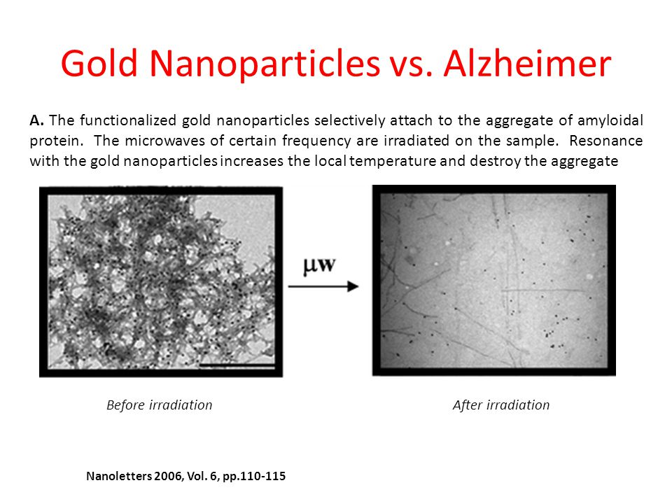 Gold Nanoparticles vs. Alzheimer
